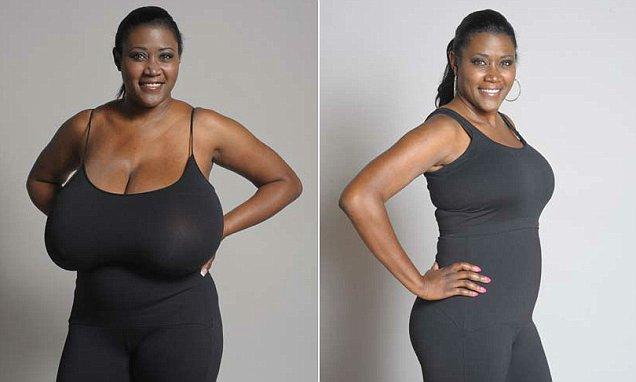 гигантомастия у женщин фото