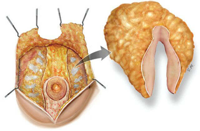 Дренаж жировой ткани