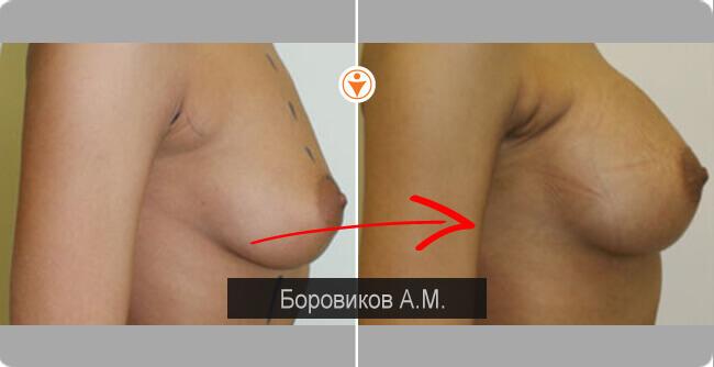 Бесплатно как увеличить грудь бесплатная методика
