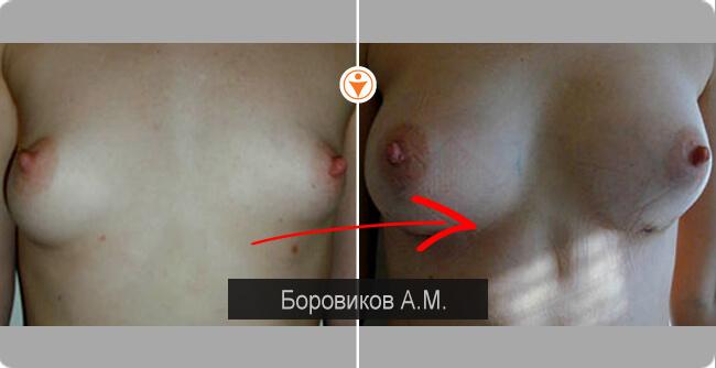 Упражнения для увеличения одной груди