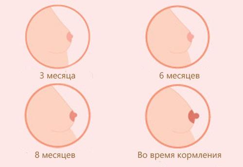Груди при беременности