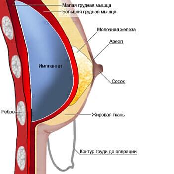 Увеличение груди и подтяжка