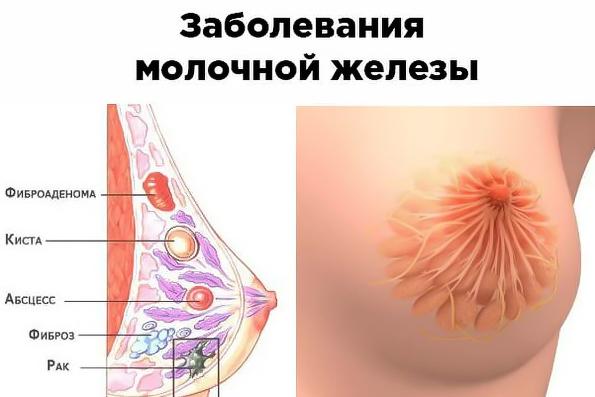 Нагрубание молочных желез до менструации thumbnail