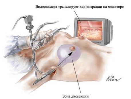 Эндоскопическому увеличению груди