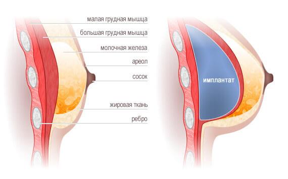 Увеличение грудных желез стоимость в москве цены
