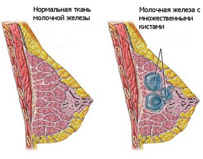 Боль при кисте яичника - efd