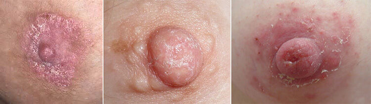 Шелушение кожи на груди
