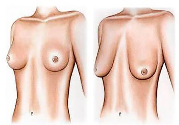 почему есть грудь висячая есть стоячая стоит