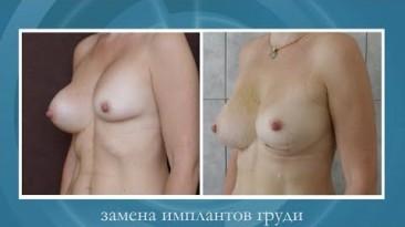 Замена имплантов груди. Капсулярная контрактура