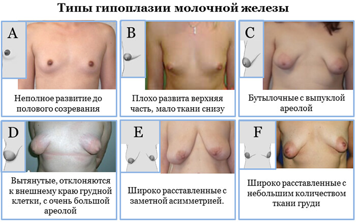 разновидности женских грудей фото
